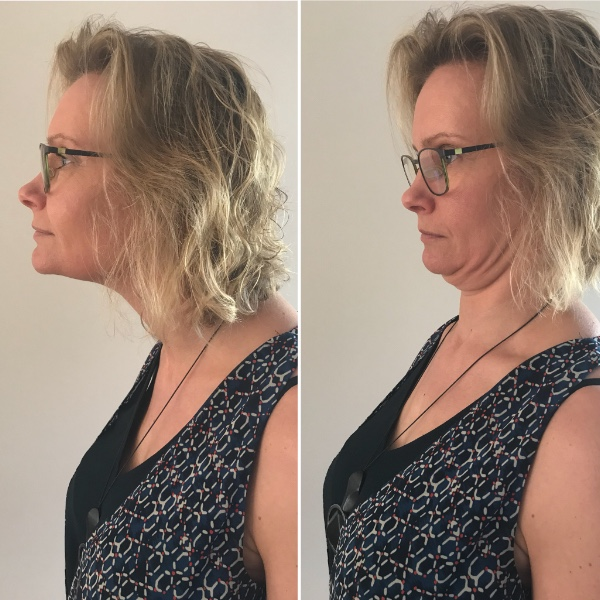 tech neck exercise 1